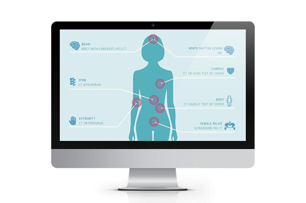 Latest design work : Boston Scientific – Education and awareness animation