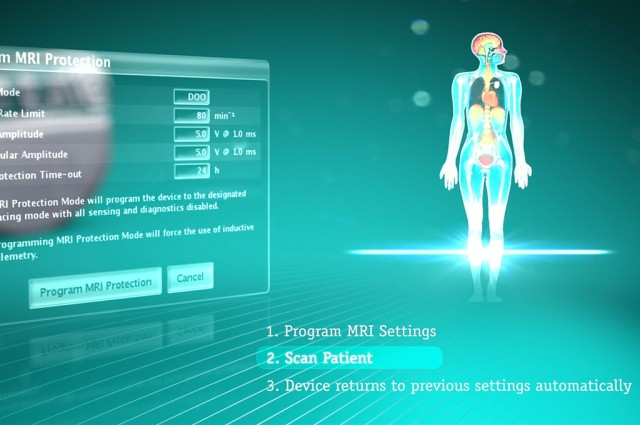 Boston Scientific Accolade Technical animation, benefits screen